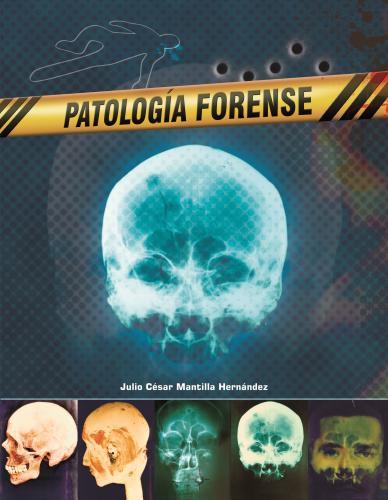 Cubierta para Patología forense